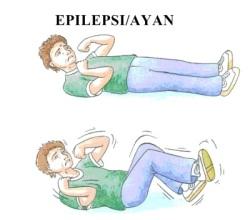 epilepsianfall 32
